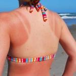 Les effets des UV sur la peau